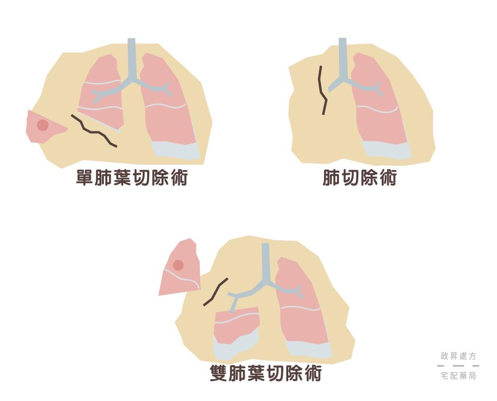 三種肺癌手術治療的方式