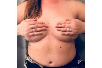 Mackenzie breast with scars after phase 1 mastectomy and reconstruction