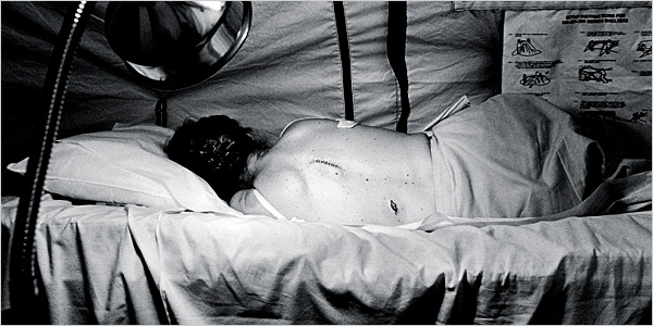 This black and white image shows a female patient with short hair lying on a sheet-draped medical bed. She is facing away from the camera, and her gown is open in the back. Two incisions of 1 to 2 inches can be seen. The walls of the room are temporary fabric tent walls. According to the caption, she traveled a long distance to a RAM camp where a dermatologist took biopsy samples, results for which were later sent to her. This is a diagnostic test she might otherwise not have been able to get due to lack of insurance coverage and geographic scarcity of specialists.