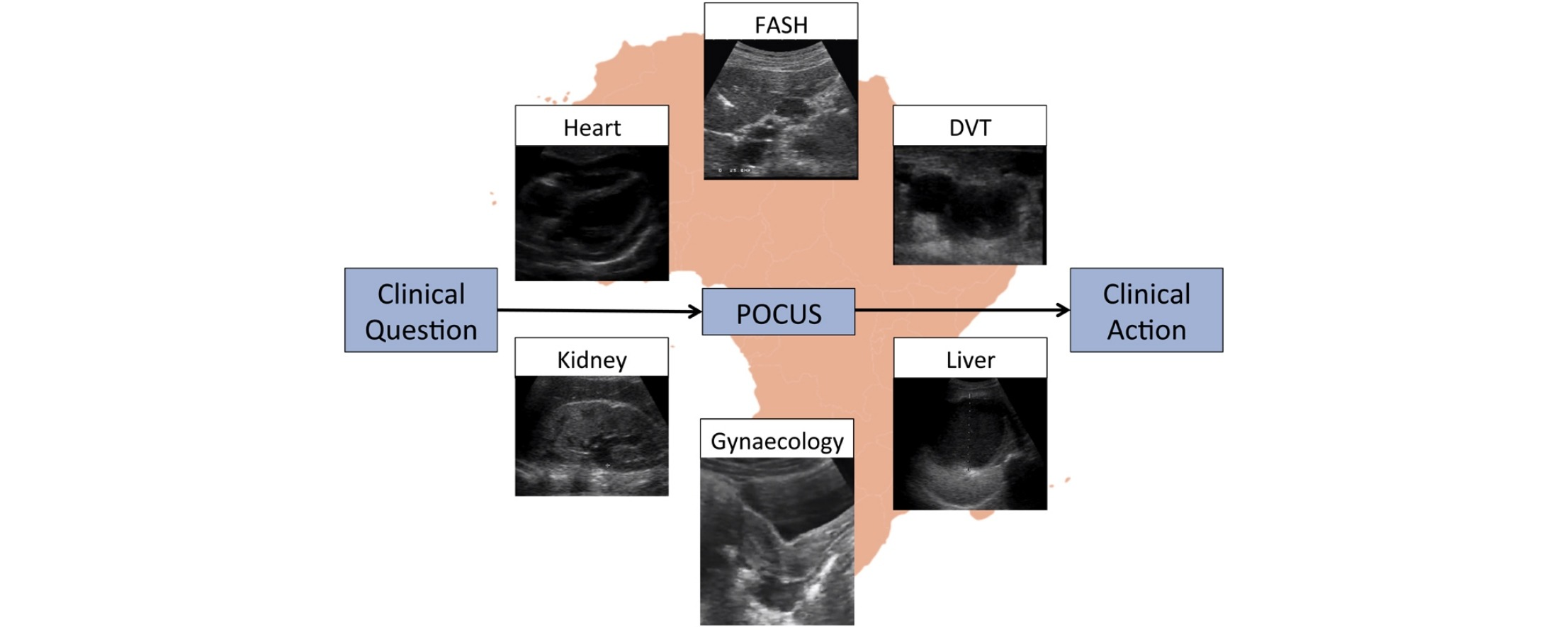 Ultrasound For Patients In A High Hiv Tuberculosis Prevalence Setting A Needs Assessment And