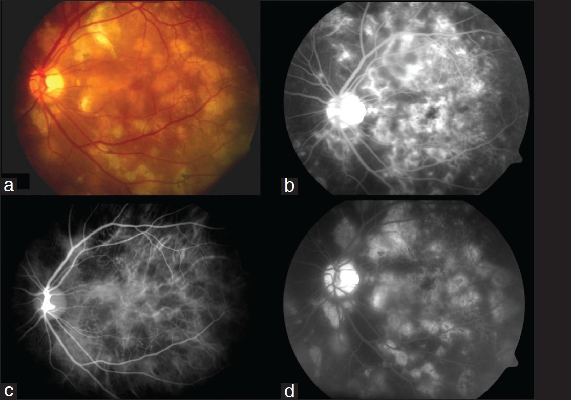 Indocyanine Green Angiography In Posterior Uveitis Agrawal
