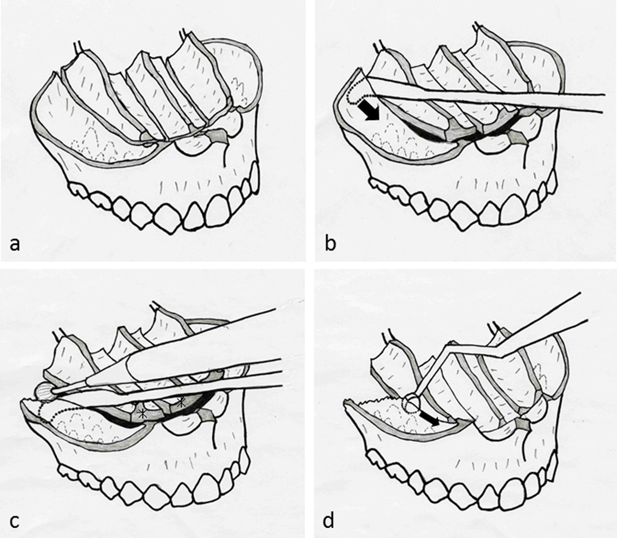 Maxillary Single Jaw Surgery Combining Le Fort I And