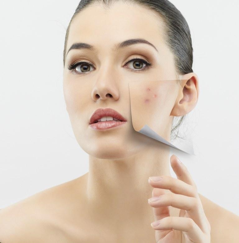 Adult Acne: 3 Effective Ways To Bid Goodbye!