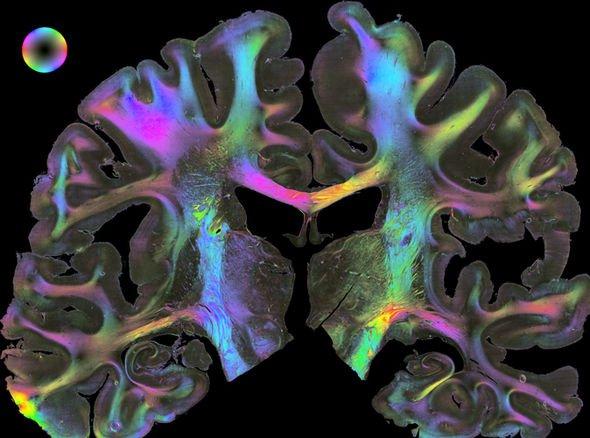 Human-Brain-EU-Project-1658484
