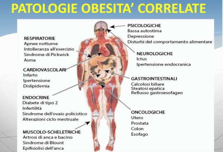 L'Obesità, una patologia complessa , dedicato agli addetti ai lavori