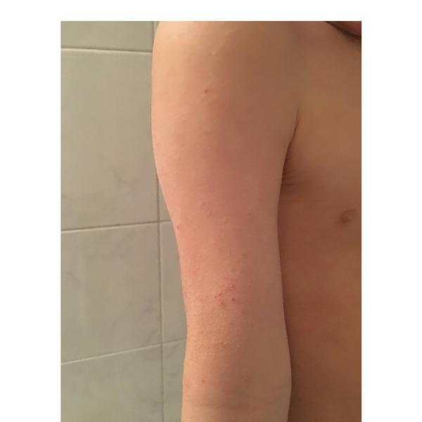 Matteo Dermatite Atopica