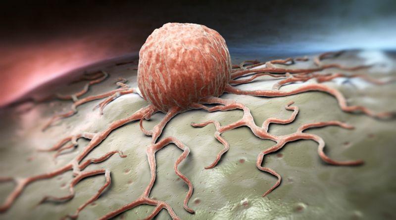 """I grassi """"cattivi"""" favoriscono la diffusione di cancro alla prostata"""