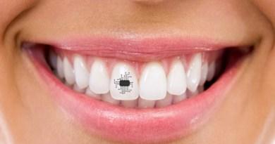 Salute, chip applicato ai denti per controllare la dieta