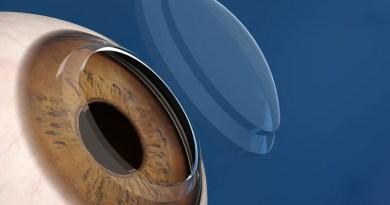 Stampata la prima cornea in 3D a partire da cellule staminali