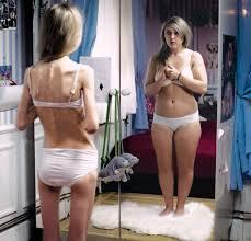 Photo of 16 anni di anoressia, la lotta di una madre per salvare la figlia