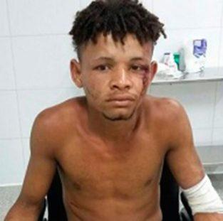 URUÇUCA: Suspeito de roubar botijão de gás tem mãos cortadas 2