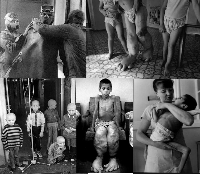 radiação destruiu milhares de vidas