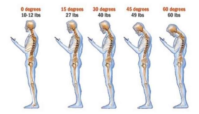 telefon ve boyun ağrıları