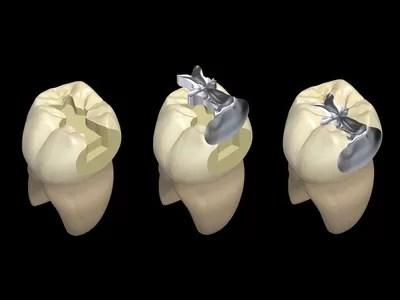 Edmonton Dental Inlay Amp Onlay Restoration Illuminada Dental