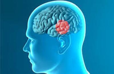 Parkinson, nell'area della serotonina i primi indizi della malattia