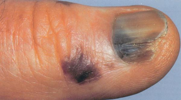 melanoma acrolentigginoso o lentigginoso acrale