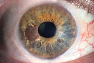 Melanoma dell'iride