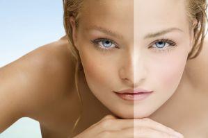 Il rischio melanoma nell'esposizione solare di persone con pelle chiara