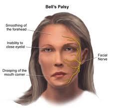 Penyakit Saraf Bell's Palsy