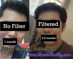 Isotretinoin Acnetrex Review Best Anti Acne