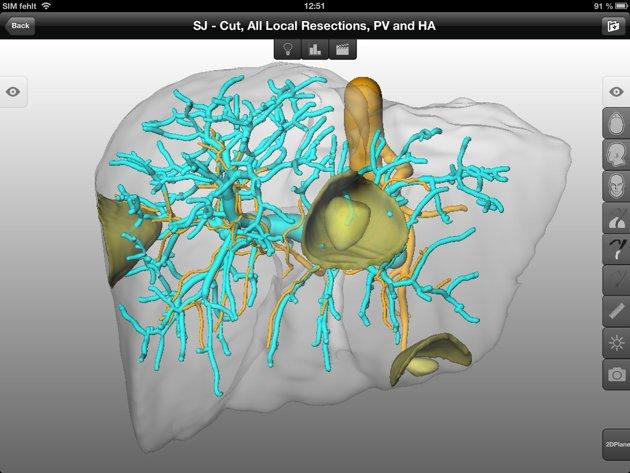Une tablette tactile (iPad) pour opérer un cancer du foie : une première dans l'histoire de la médecine ! 1