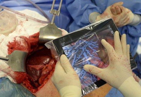 Une tablette tactile (iPad) pour opérer un cancer du foie : une première dans l'histoire de la médecine ! 4