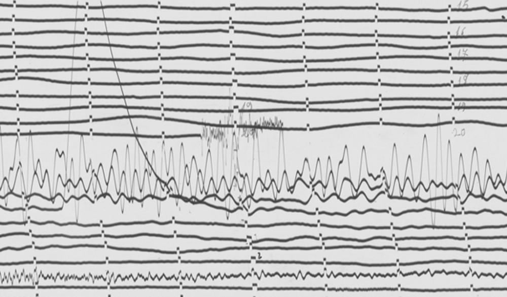 Sismogramma del terremoto in Friuli 1976 (estratto)