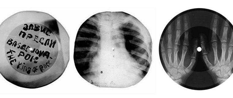 Musica da contrabbando: quando i sovietici incidevano dischi sulle lastre radiografiche