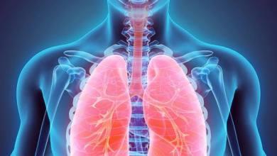 tumore polmone
