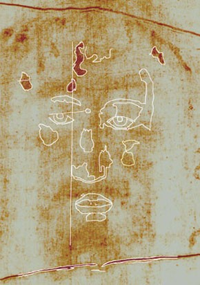 Abb. 24: Antlitz auf Grabtuchoriginal mit Skizze