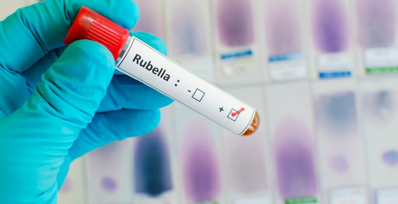 Rubella Vaccine Immunization Information