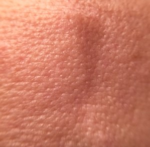 image of pores before strivectin
