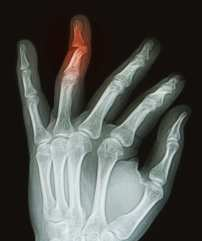 X-ray of hand with broken ring finger