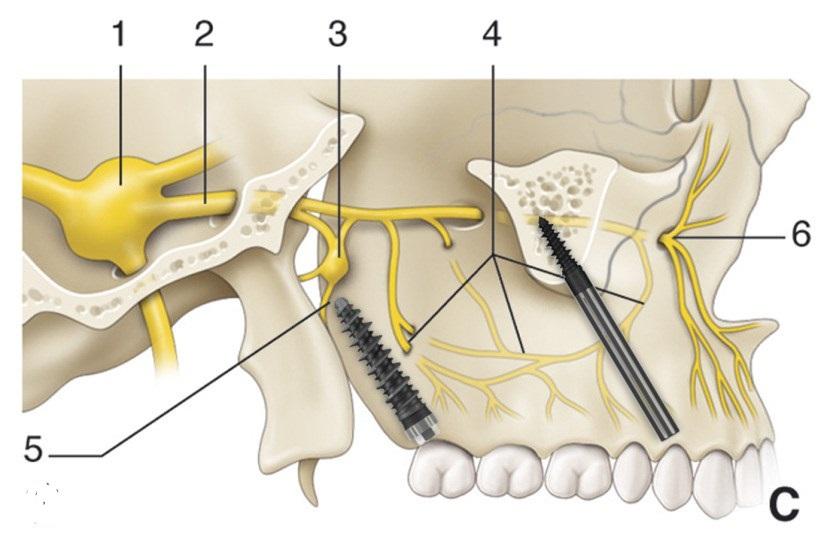 Tecniche chirurgiche pazienti atrofici zigomatici pterigoidei griglie controindicazioni rischi complicanze