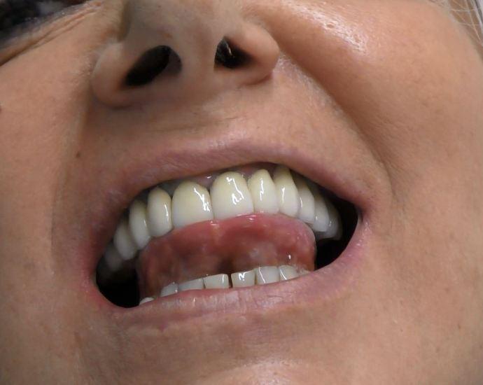 implantologia a carico immediato senza osso