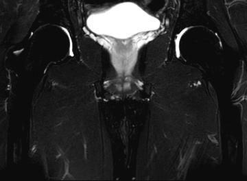 Magnetresonanztomographie - Bildgebendes Verfahren der medizinischen Diagnostik