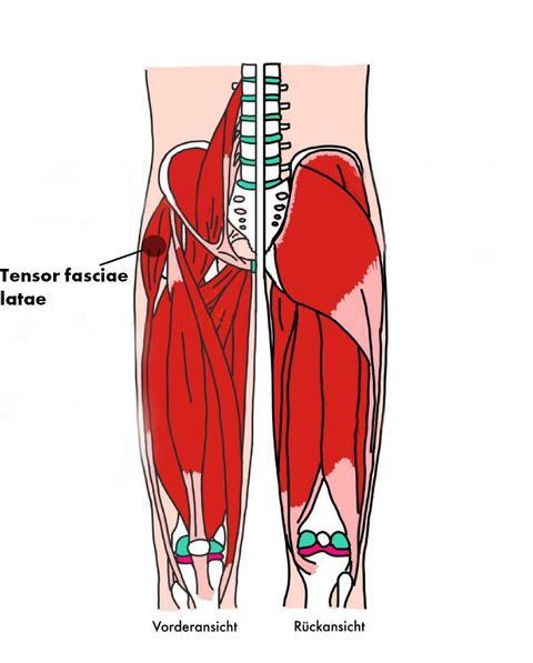 Illustration der Triggerpunkte des Tensor faciae latae