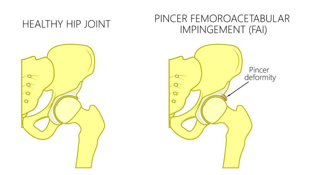 Engpass eines Hüftgelenks durch verstärkte Überdachung der Pincer Deformität