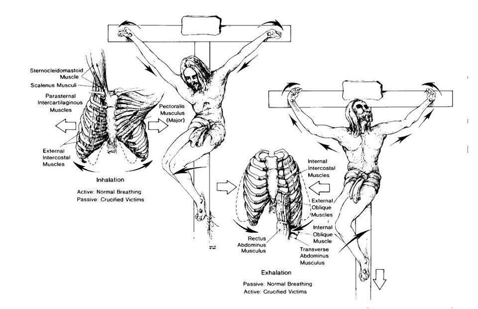 Crucifixion (2)