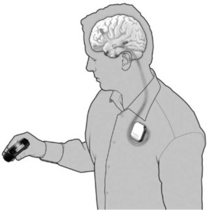NeuroVista's implantable EEG for early epileptic seizure detection