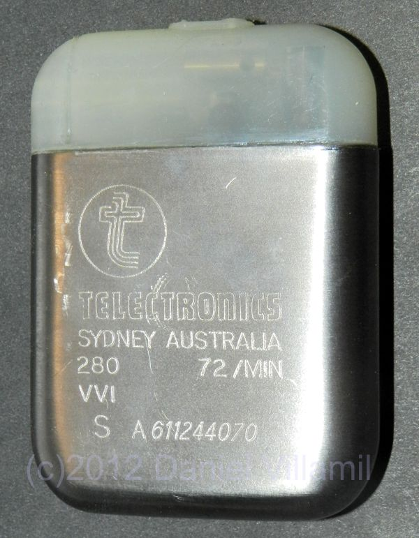 Telectronics VVI pacemaker picture by Daniel Villamil, CCC Medical