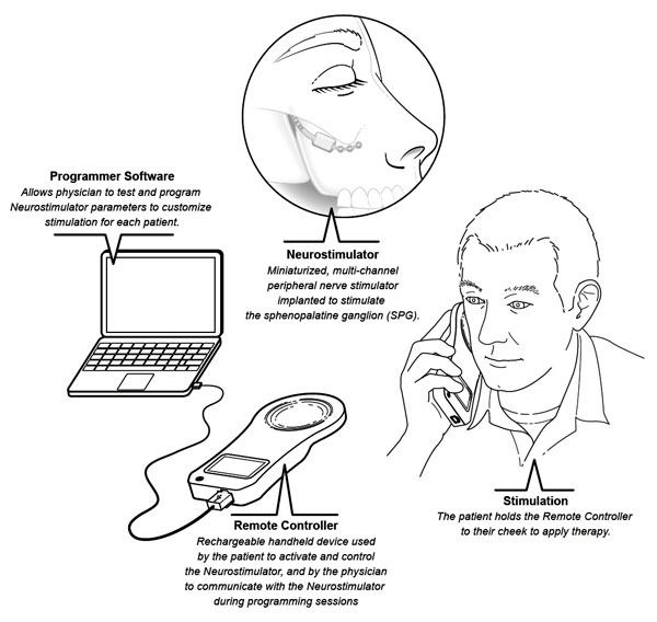 ATI SPG Neurostimulator for Cluster Headache and Migraine www.implantable-device.com David Prutchi PhD