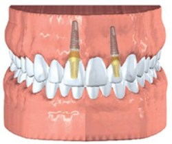 Single tooth replacement with dental implants