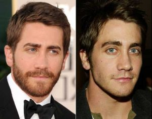 antes-e-depois-na-barba-minoxidil