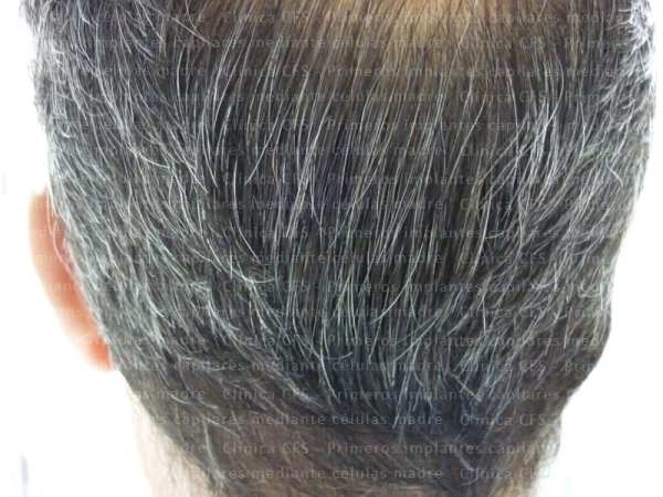 hair regeneration with stem cells - Toni 1year