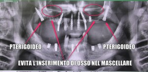 implantologia con poco osso