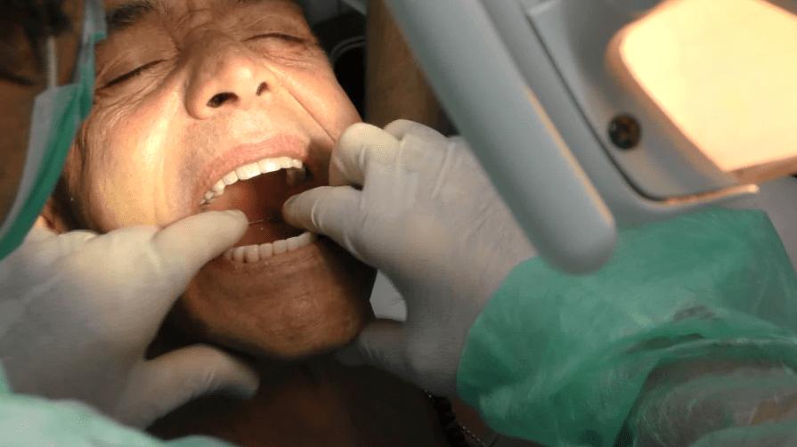 Denti fissi poco osso
