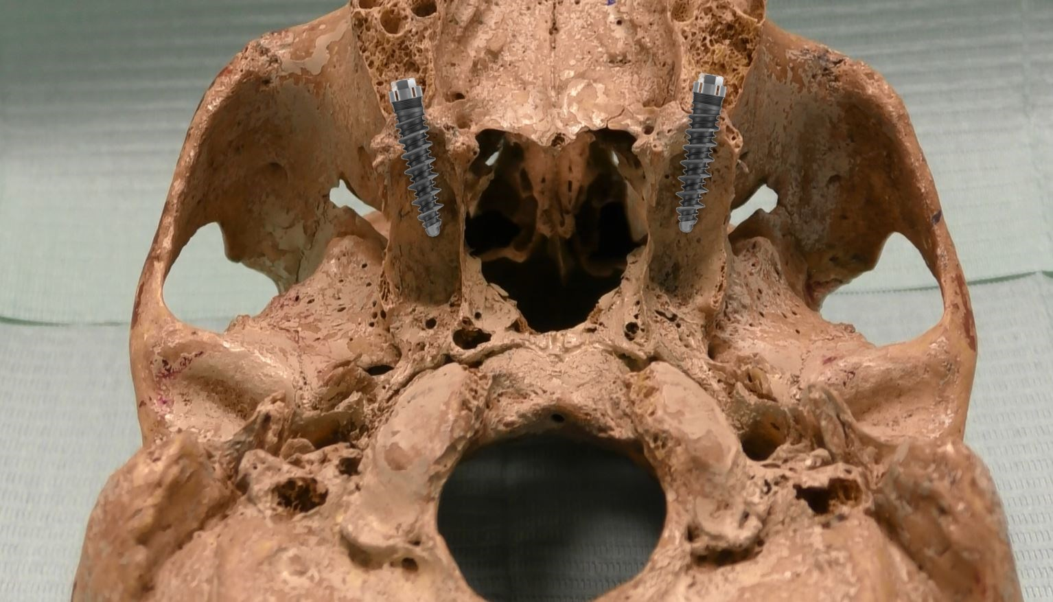 Innesto d'osso dentale – Impianto osseo dentale prezzi