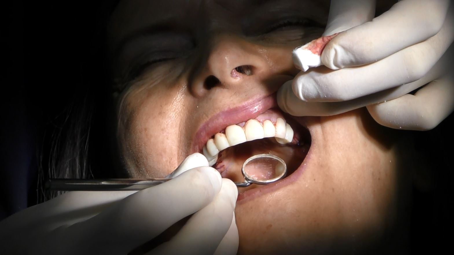 Implantologia a carico immediato senza osso (Ultimi pazienti operati casi clinici)