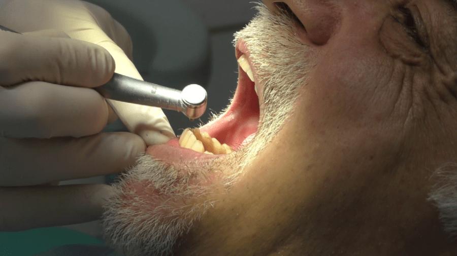 Implantologia dentale senza falsa gengiva